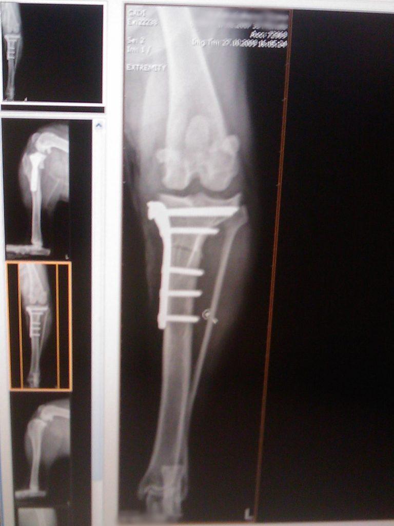 Röntgenbild TPLO